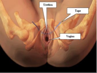 Tension free Vaginal Tape Obturator- (TVT-O)
